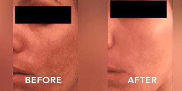 3 weeks post Dr. Anita Hyperpigmentation treatment