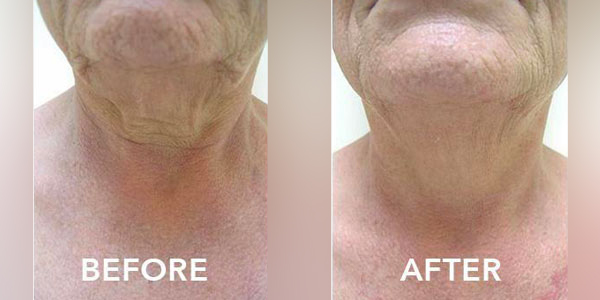 6 months post ultherapy neck treatment