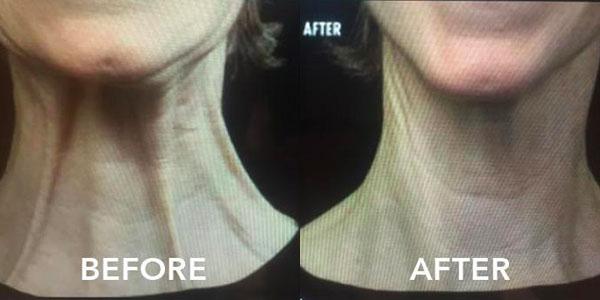 Botox neck bands