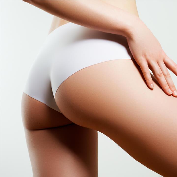 Non-Surgical Butt Lift